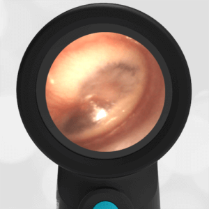 Wispr Digital Otoscope by WiscMed showing image of Acute Otitis Media AOM