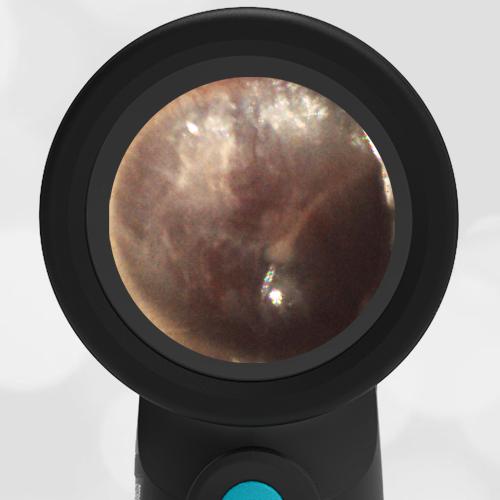 Wispr Digital Otoscope showing image of Hemotympanum