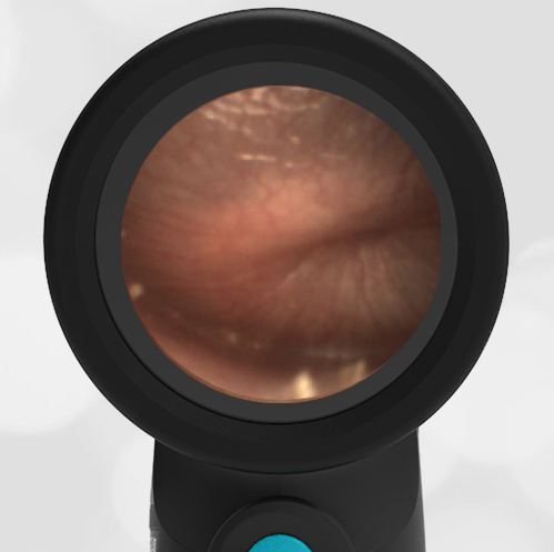 Wispr Digital Otoscope by WiscMed showing image of Acute Otitis Media AOM by Dr Preis