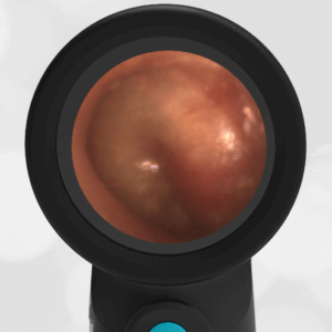 Wispr Digital Otoscope by WiscMed showing ear exam image of Acute Otitis Media AOM by Dr. Andrew Schuman