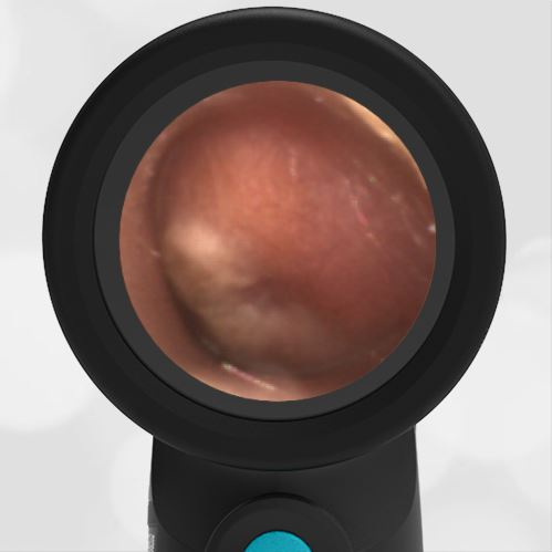 Acute Otitis Media AOM in 10-month old image on Wispr Digital Otoscope