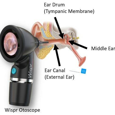Normal-Ear-Anatomy-aspect-ratio-1×1