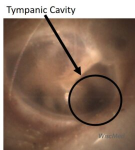Tympanic shadow behind the ear drum
