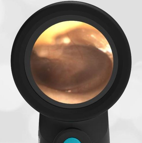 wispr digital otoscope ear image
